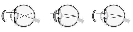 就寝中にコンタクトレンズを装用し角膜のカーブを変えて近視を治す