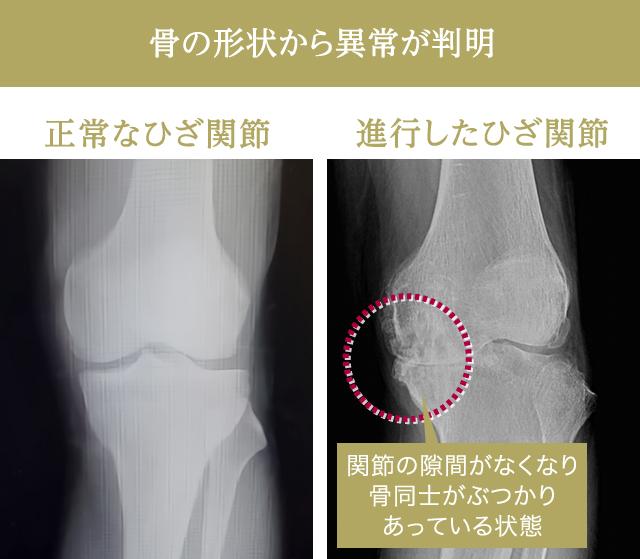 デメリット 損傷 手術 半月 板