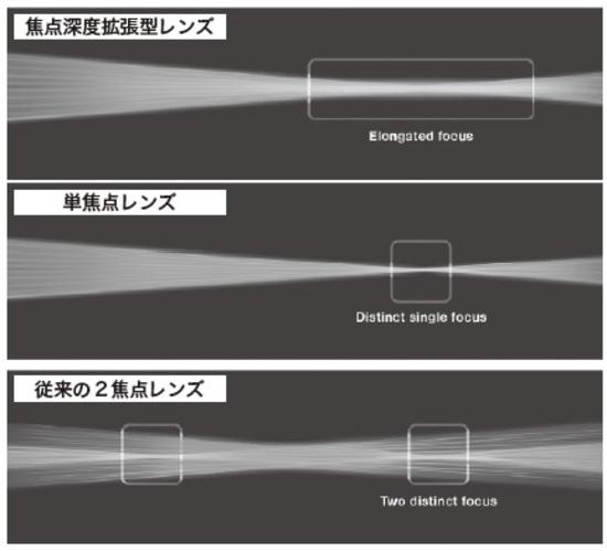 [図表2]従来の2焦点レンズと焦点深度拡張型レンズの焦点パターンの違い
