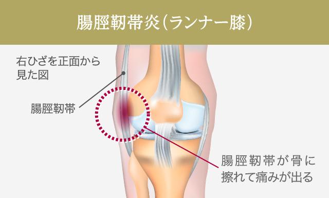 の と 痛い 膝 裏 曲げる 膝を曲げると裏が痛い 膝窩痛の分析