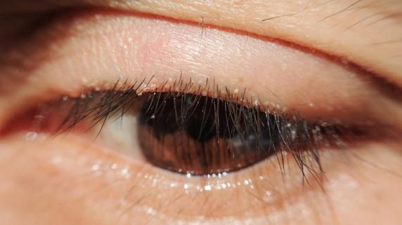 眼科医が最も恐れる…白内障手術後の合併症「術後眼内炎」とは