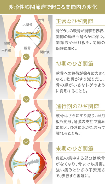 変形性膝関節症 障害年金