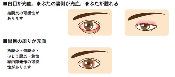 結膜炎 片目 コロナ
